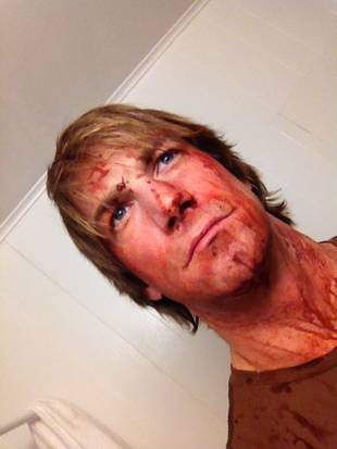 Charlie O'Connell Gets Bloody For Huff Movie — Creepy Pic of the Day