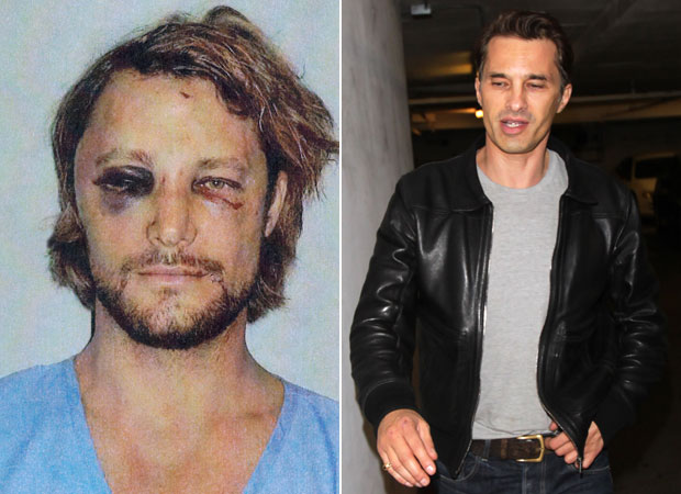 Gabriel Aubry and Olivier Martinez Step Out After Brawl — Whose Injuries Are Worse? (PHOTOS)