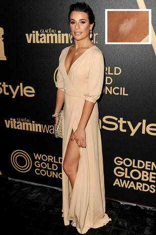 Lea Michele Suffers Embarrassing Fashion Mishap on the Red Carpet