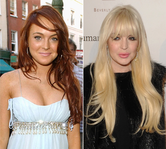 What Happened to Lindsay Lohan's Face? LiLo Then vs. Now