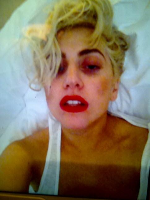 Did Lady Gaga Gain Weight? (PHOTOS)
