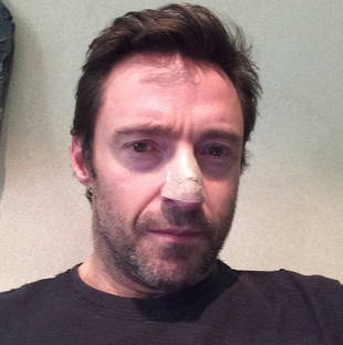 Hugh Jackman Has Skin Cancer Removed — What Happened to His Face?