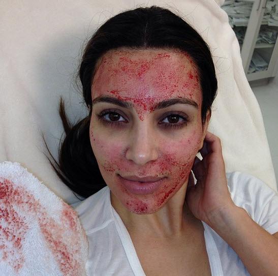 Kim Kardashian's Vampire Facial: Experts Are Divided