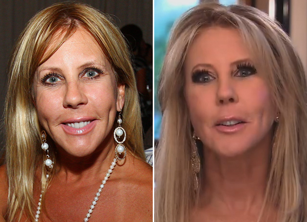 Vicki Gunvalson Shows Off New Plastic Surgery on the RHoOC Season 8