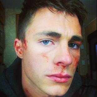 OMG! What Happened to Colton Haynes's Face? (PHOTO)