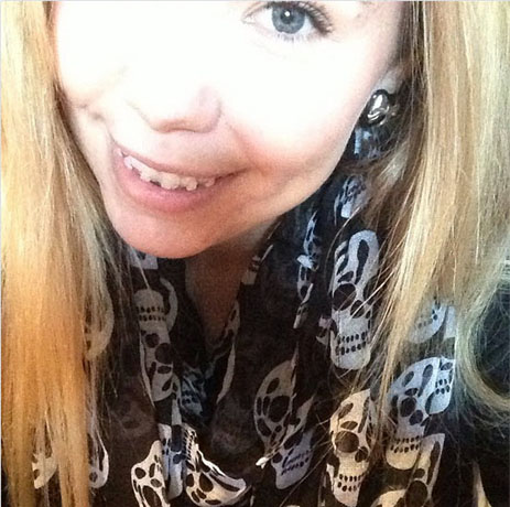 Kailyn Lowry Is Embarrassed By Her Braces!