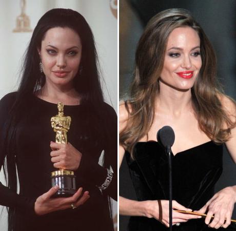Angelina Jolie: I Had a Double Mastectomy