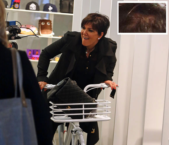 Is Kris Jenner's Hair Thinning?