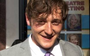 Red Wedding Reaction: Raising Hope's Lucas Neff Is Traumatized For Life (VIDEO)