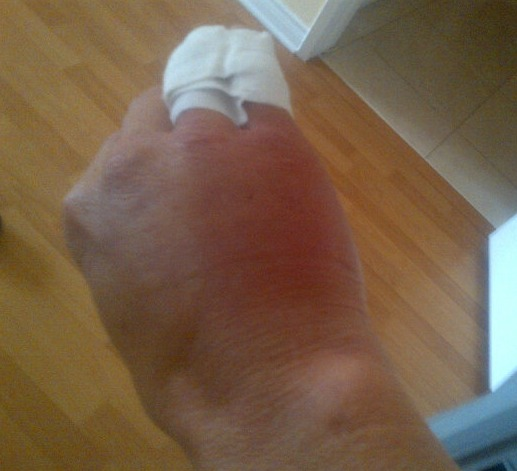 Brandi Glanville Breaks Her Hand — How Did It Happen?