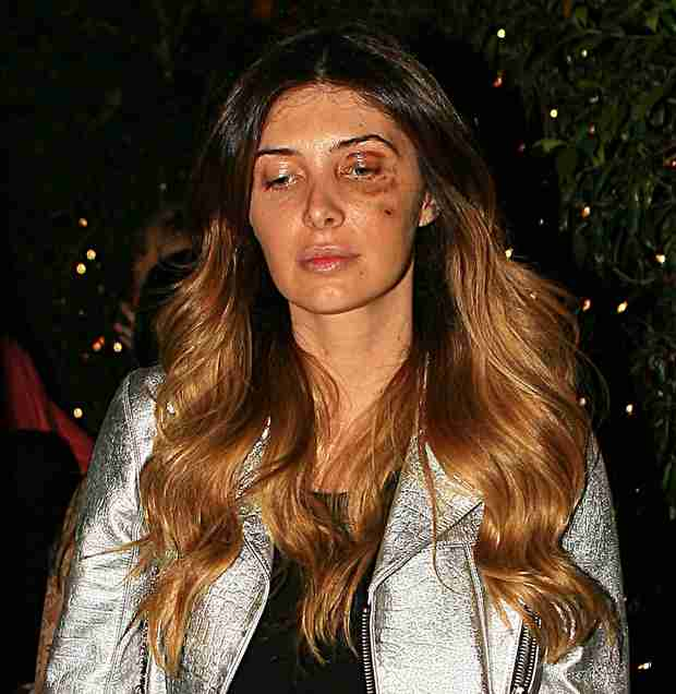 Kim Kardashian BFF Brittny Gastineau Steps Out With Black Eye — What Happened?