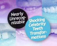 w630_Celeb-Teeth-Transformation-1422645070
