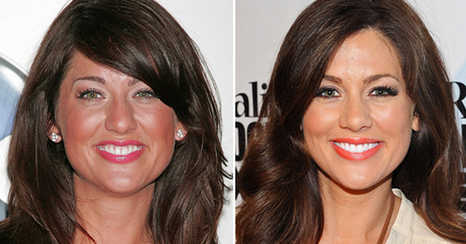 jillian-harris-nose-job