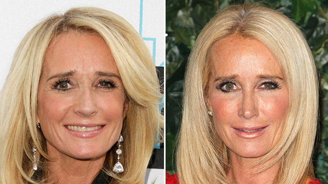 kim-richards-nose-job